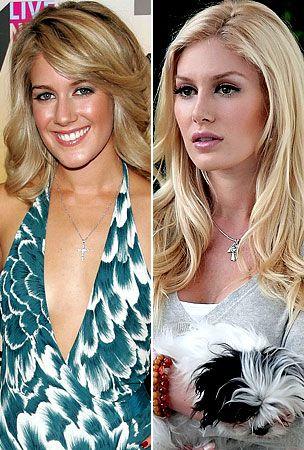 Heidi Montag Plastic Surgery Nose Jobs