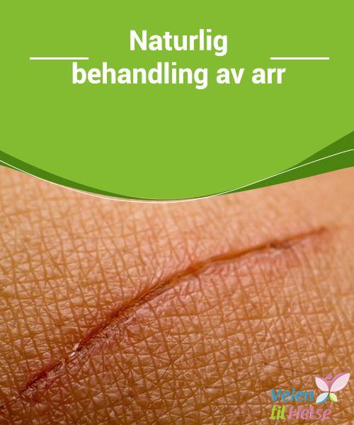 Naturlig behandling av arr  Aloe vera #hydrerer og skaper #fleksibilitet, mens nypeolje fornyer huden og er #spesielt god til å #helbrede ødelagt hud.