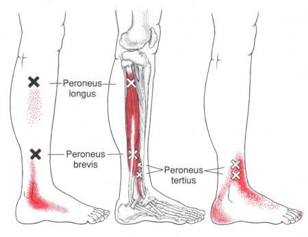 Peroneus Tertius | The Trigger Point & Referred Pain Guide