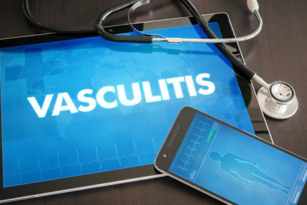 By Staff. Adults with giant cell arteritis – a form of vasculitis, or inflammation of blood vessels – received good news this week with the US FDA expanding the approved use of subcutaneous Actemr…