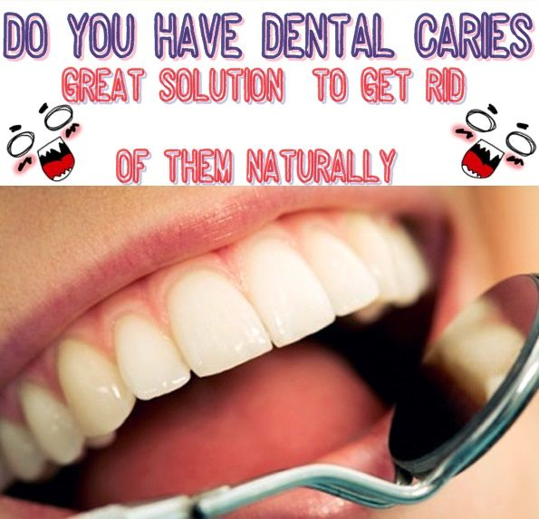 Do you have small dental carie  Here you have some great solutions to get rid of them naturaly