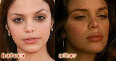 Vanessa Ferlito Inflated Lips | Cosmetic Plastic Surgery