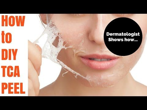 The Ultimate Guide to Doing Your Own TCA Chemical Peel at Home