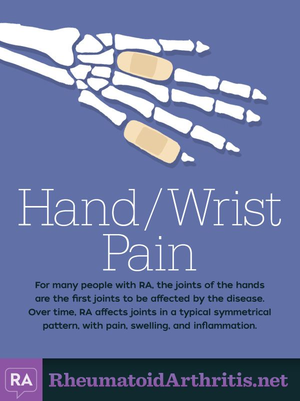 10 Common Symptoms of RA: Hand Wrist Pain | RheumatoidArthritis.net