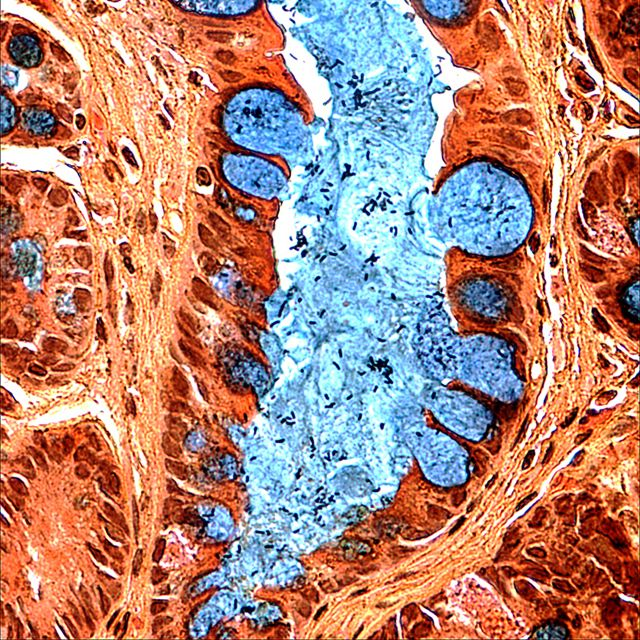 Goblet cells (blue) in a precancerous lesion in the human stomach  Image of the Day: Abnormal Tissue | The Scientist Magazine®