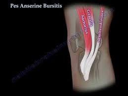 Afbeeldingsresultaat voor bursitis pes anserinus superficialis