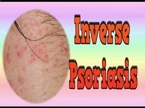 Psoriasis Revolution - Psoriasis Revolution - ★ psoriasis-cure-vi... Inverse Psoriasis, How Do You Get Psoriasis, Scalp Psoriasis Natural Treatment, Psoriasis Disease. What Makes This Psoriasis Cure Breakthrough System So Unique Is That It Gives You The Power To... Cure Psoriasis Permanently. Cure Psoriasis Holistically. Cure Psoriasis Without Drugs or Typical Psoriasis Treatments. Cure Psoriasis With a Safe, Effective and Clear Plan and Put an End to The Confusion and Conflicting Advi...
