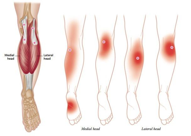 Trigger Point Therapy - Plantar Fasciitis – Niel Asher Healthcare