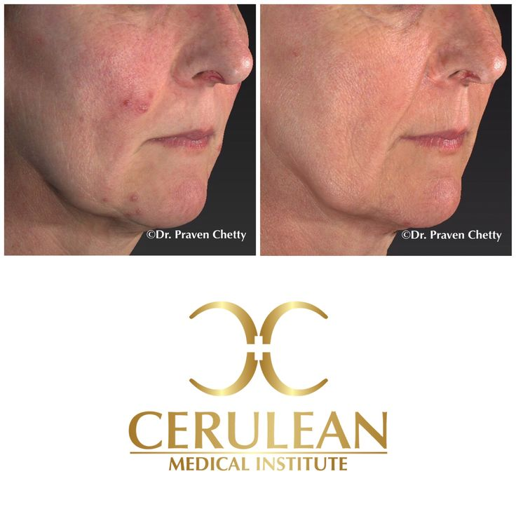 Rosacea be gone✨Before and after photos Illustrating results from customised Rosacea treatment at Cerulean Medical Institute. Flawless skin beckons✨ #BeforeAndAfter #Rosacea #Enhance #Cosmetic #Dermatology #CeruleanMedicalInstitute #DrPravenChetty #Realself #TopDoctor #Kelowna #Okanagan