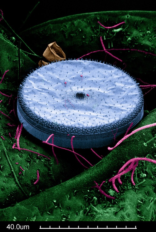 DIATOMS are single celled photosynthetic algae that are abundant in Earth's lakes and oceans.