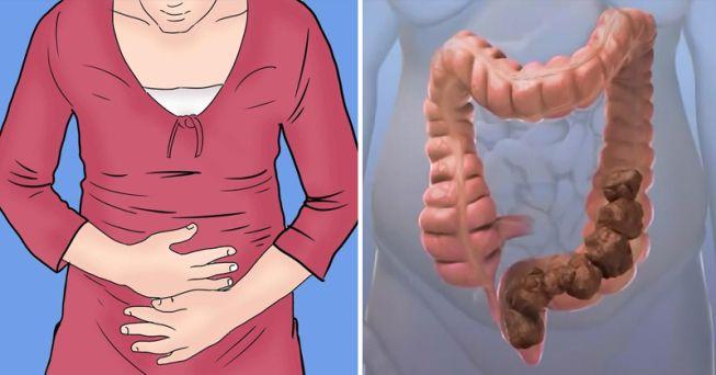 10 façons de se débarrasser de la constipation et sa cause principale