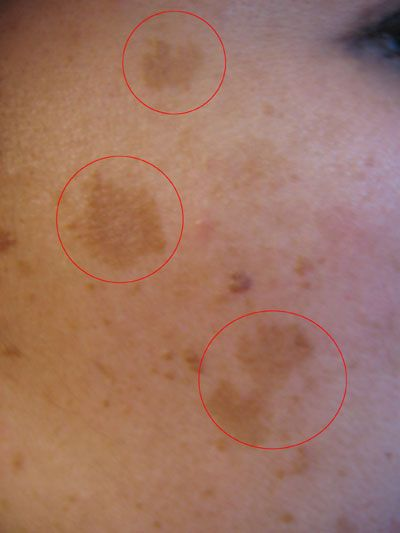 How+to+Remove+Dark+Patches+and+Spots+From+Your+Face