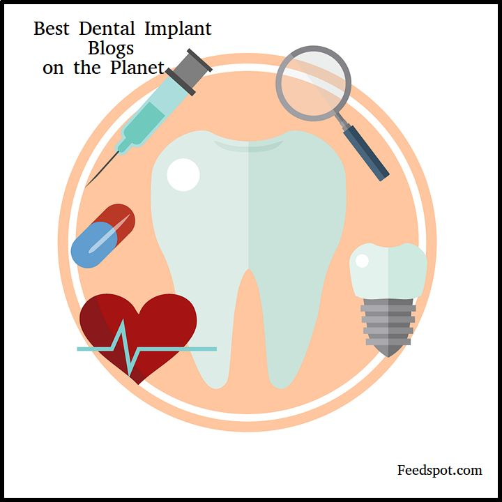Top 50 Dental Implant blogsDental Implant Blogs ListThe Best Dental Implant blogs from thousands of top Dental Implant blogs in our index using search and social metrics. Data will be refreshed once a week.If your blog is selected in this list, you have the honour of displaying this...