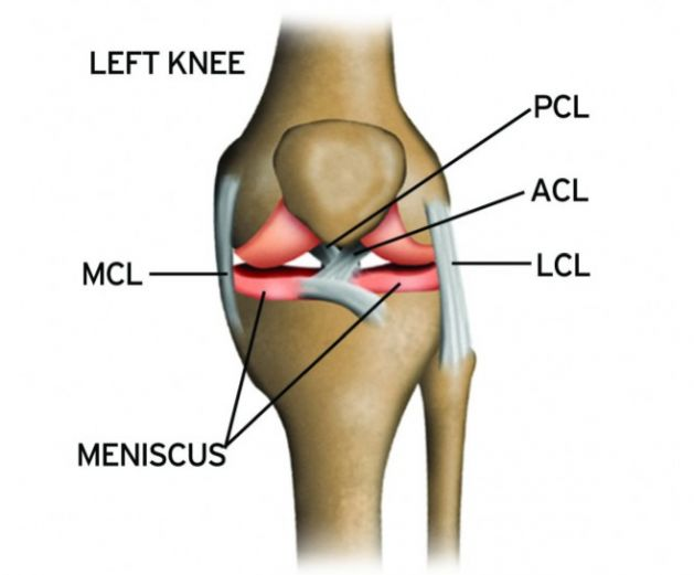 Reduce ACL Tears By Preventing Knock Knees