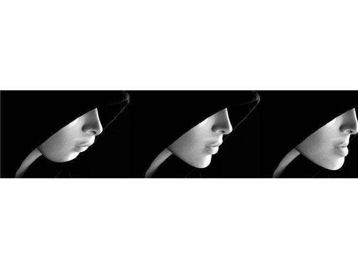 Cirurgia Ortognática - Trauma de Face - Enxerto Ósseo Goiania