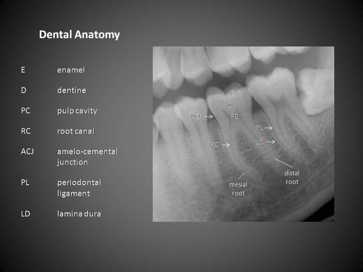 Dental anatomy  www.DentalAssistantStudy.com
