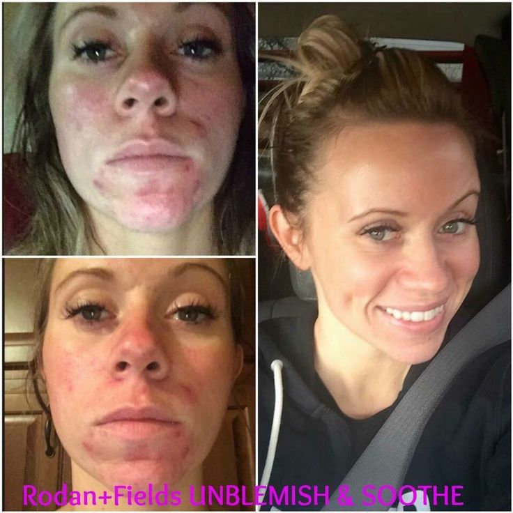 Wow!! Check out Lauren's GORGEOUS results using Rodan + Fields Award Winning skincare!! Results like THIS is WHY R+F's UNBLEMISH is now THE #1 Premium Acne Brand in the U.S. and WHY Rodan + Fields is the 2nd LARGEST & FASTES Growing Premium skincare! Not only does Lauren's skin look AMAZING... her R+F Business is BOOMING!!! She joined in August 2015 & she'll be Celebrating her FREE Lexus by this fall!!! Are you Ready? Message me ~ www.barbaramccarty.myrandf.com