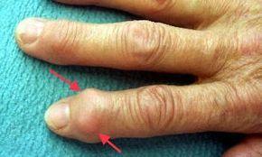 Heberden-Arthrose  Fingergelenksarthrose mit Heberden-Knötchen