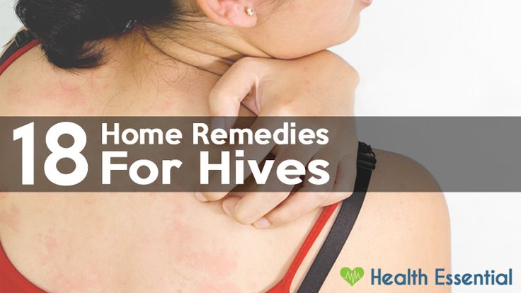 Want to get rid of hives fast? Check out these 18 remedies here => http://healthessential.net/home-remedies-hives/ #skin #hives #remedies