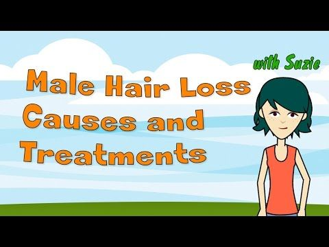 Male Hair Loss Causes and Treatments - Understanding Male Pattern Baldness and What You Can Do -  How To Stop Hair Loss And Regrow It The Natural Way! CLICK HERE! #hair #hairloss #hairlosswomen #hairtreatment  – How to regrow your hair fast. Hair loss specialists were stunned! Hi! I'm robo-Suzie and today I'll talk to you about Male Hair Loss Causes and Treatments. Also... - #HairLoss