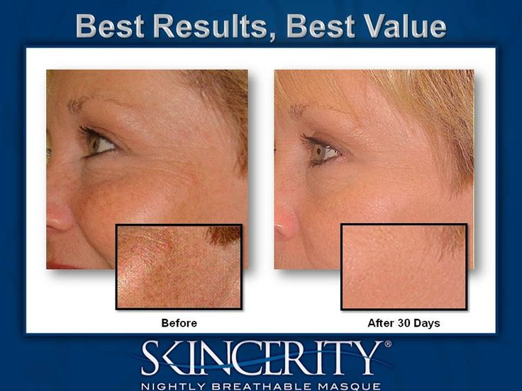 BEFORE AND AFTER GALLERY   NuCerity CentralNuCerity Central