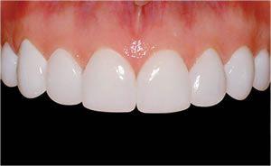 Hollywood smile in Lebanon Beirut veneers, Lumineers by Ferrari dental clinic the first ISO 9001 in the Middle East.  For more info visit: http://www.dentalcliniclebanon.com/   http://www.facebook.com/dentalcliniclebanon  http://www.twitter.com/dentalclinicleb  http://www.vimeo.com/dentalcliniclebanon  https://plus.google.com/b/112900234352911277449/112900234352911277449  Hotline: +961 70 85 2222 (whatsup - Viber- Google talk)  Skype ferraridentalclinic…