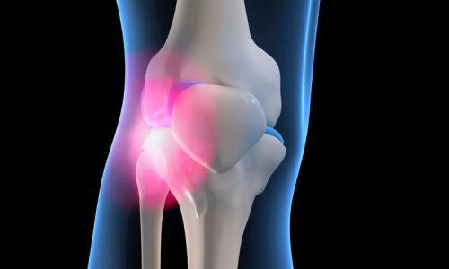 Noninvasive Procedure Alternative to Knee Replacement Surgery