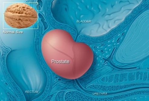 The prostate can grow larger as men age, sometimes pressing on the bladder or urethra and causing symptoms similar to prostate cancer. This is called benign prostatic hyperplasia (BPH). It's not cancer and can be treated if symptoms become bothersome. A third problem that can cause urinary symptoms is prostatitis. This inflammation or infection may also cause a fever and in many cases is treated with medication.  For more information please visit: www.prosman.in #Livingwithprostateproblems