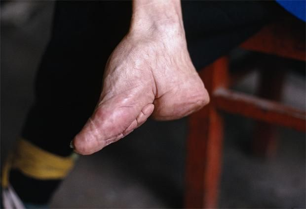 A small foot was considered a sign of beauty to women. Foot binding was used to make females feet smaller. The technique began at the age of 5, the women would rap their feet in strips of cloth. For ten years they would do this. By the time they were 15 they had feet called 'Golden Lilies'. The feet are about 7 centimetres long.