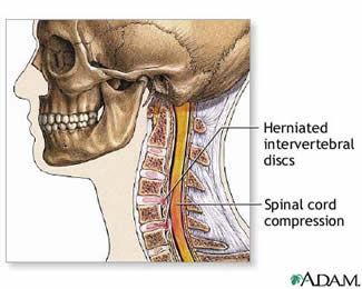 herniated cervical disc with compression.  Symptoms    Cervical discs cause pain in the neck, shoulders, and arms. This is called radiculopathy. Pain may radiate down the arm into the hand in the specific distribution of the compressed nerve root.