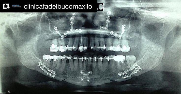 Radiografia pós operatório de Ortognática by @clinicafadelbucomaxilo #odonto #surgery #oralsurgery #oralsurgeon #dentist #dentista #dentistry #buco #bucomaxilo #maxillofacial #maxillofacialsurgery #odontoporamor #saudebucal #cirugiabucal #unigranrio #saogoncalo #niteroi #riodejaneiro #oralmedicine #cirurgiaoral #cirurgiaortognatica #humanteeth #dentalpicture #dentalphotography #dentalrepost by dentalrepost Our Oral Surgery Page: http://ift.tt/1Mj1b9g Google My Business…