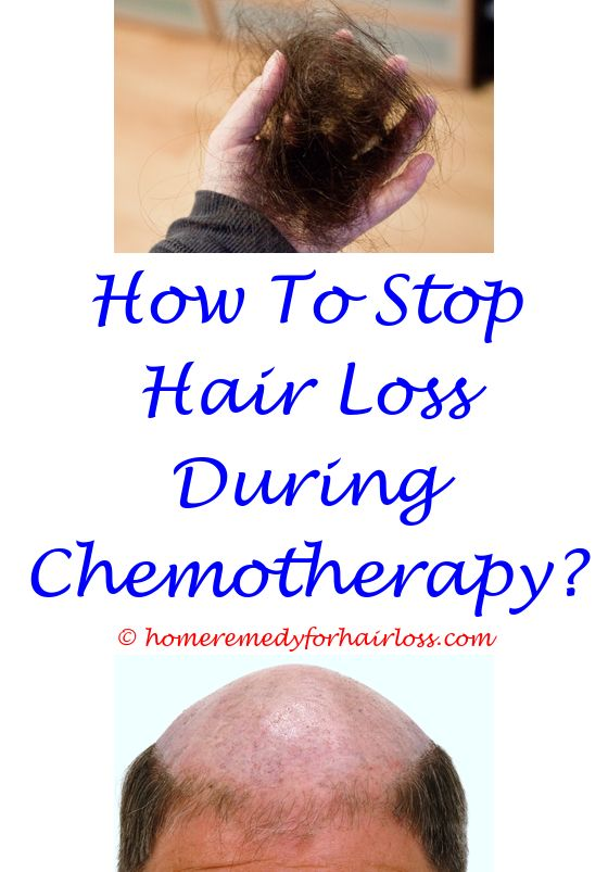 independent hair loss product reviews - post menopausal hair loss.low androgenic hair loss hair loss arounf gind quarters on digs easy home remedies to prevent hair loss 8137820391
