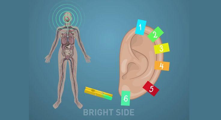Csíptesd a fül különböző pontjaira a különböző tipusú fájdalom enyhítésére.