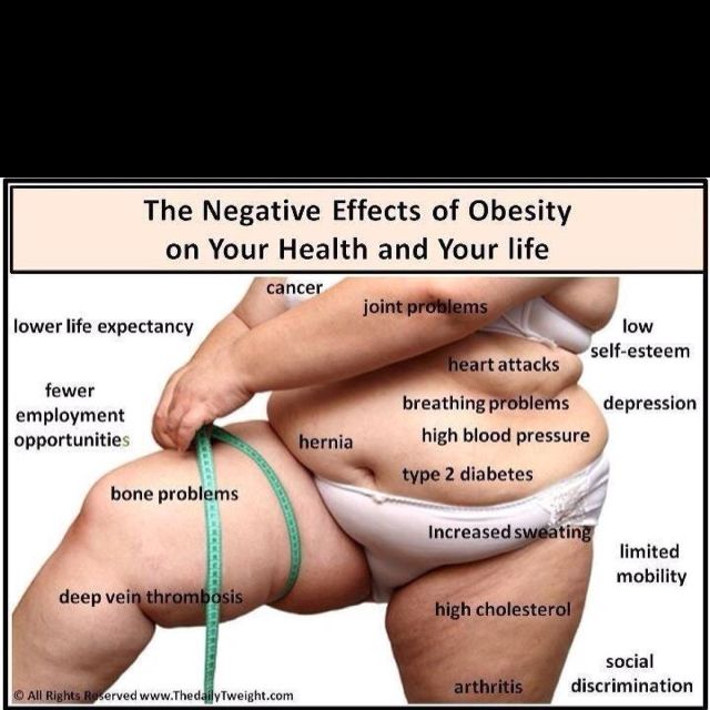 The effects of obesity.  I love helping people lose weight and get healthy.  www.fitnesswithheart.tsfl.com