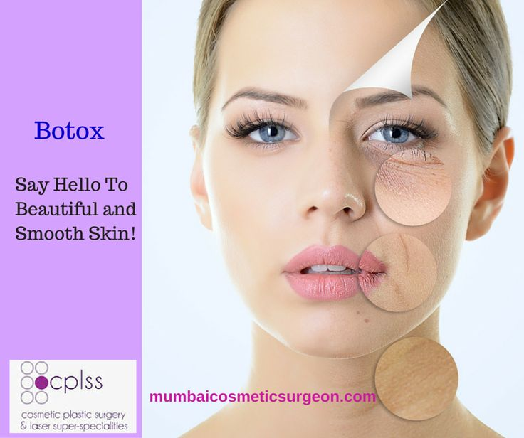 botulinum toxin strabismus