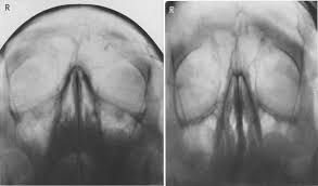 Image result for google and europe uk craniosynostosis
