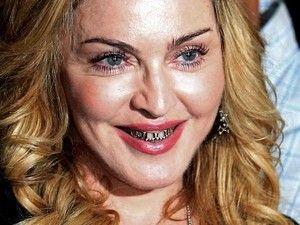 Après Rihanna, c'est Madonna qui craque pour les dents en or sur http://www.closermag.fr/people/people-anglo-saxons/apres-rihanna-cest-madonna-qui-craque-pour-les-dents-en-or-191763