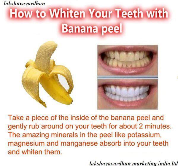 banana peel teeth whitener..gonna try.