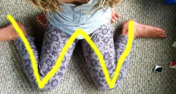 """Evitar que los niños se sienten en """"W"""". Puede causar problemas, o ser la causa del problema."""