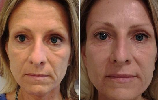 Organic Facelifts Obtained Via Face Aerobics Workouts