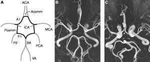 Migraines associated with variations in structure of brain arteries