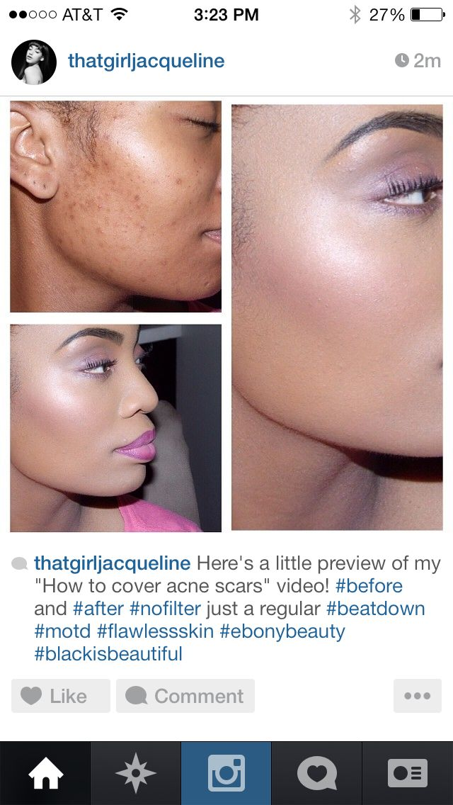 http//youtu.be/7YmZLvv_Fk How to cover up acne scars www