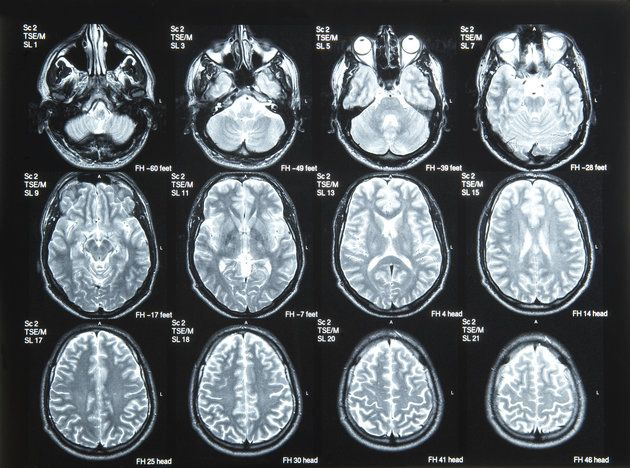 Brain Scans Could One Day Predict Depression Relapse