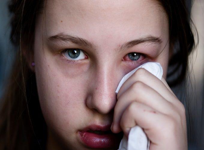 Conjuntivite  Alérgica e Viral