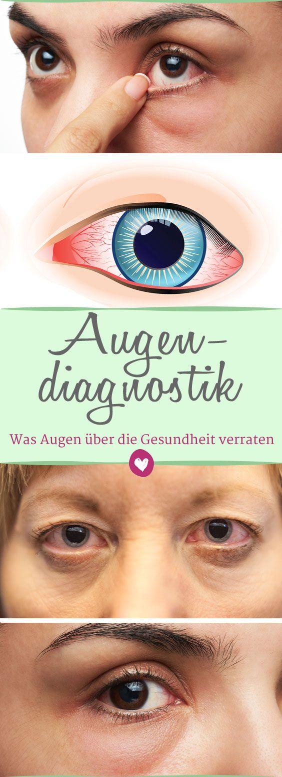 Die #Augen verraten viel über die #Gesundheit - mithilfe der #Augendiagnostik #Test