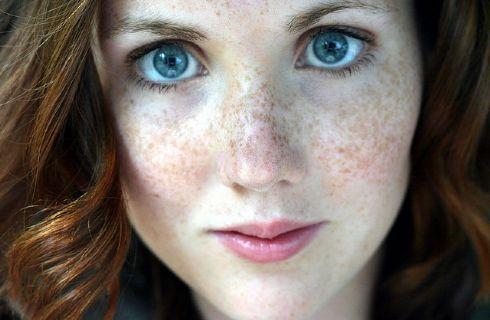 Macchie scure dovute a eccesso di melanina? Causa dell'iperpigmentazione, ovvero all'accumulo di questa sostanza nelle zone del labbro superiore, degli zigomi o del naso. Ecco con quali prodotti curarle e attenuarle.