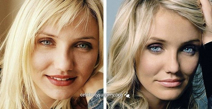 Cameron Diaz. Celebrity Plastic Surgery. Before and After Nose job (rhinoplasty). #celebrity. www.drgregpark.com