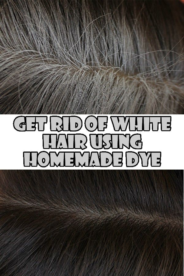 Reduce Premature Grey Hair Naturally