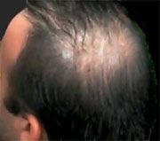 Male Pattern Baldness Tied to Prostate Cancer #prostate #cancer #baldness
