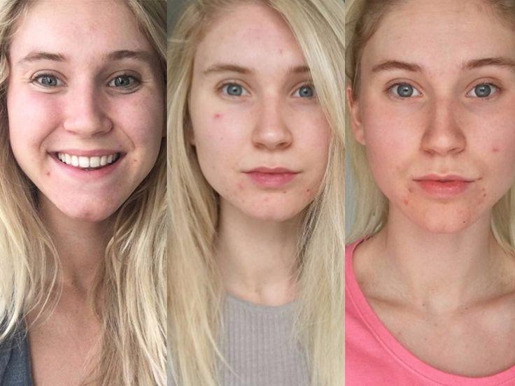 This Instagrammer stopped posting bikini photos and started sharing no-makeup selfies  here's the powerful reason why